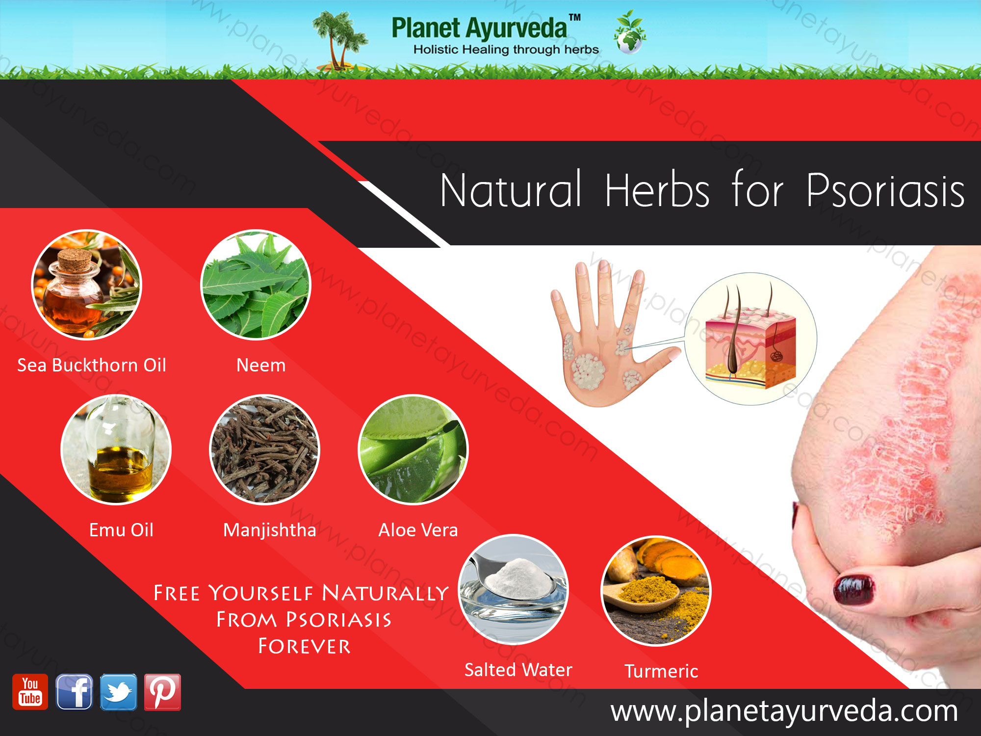 natural-herbs-for-psoriasis