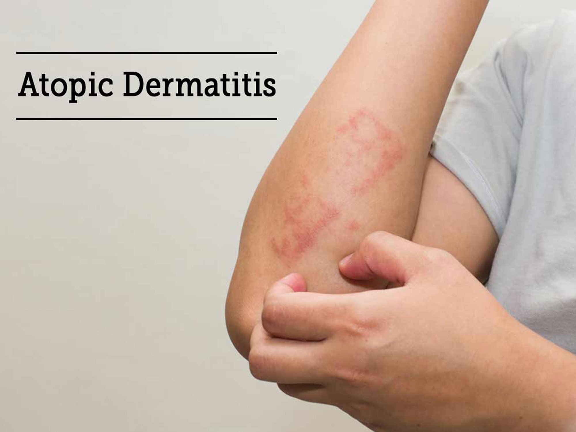 Atopic-Dermatitis