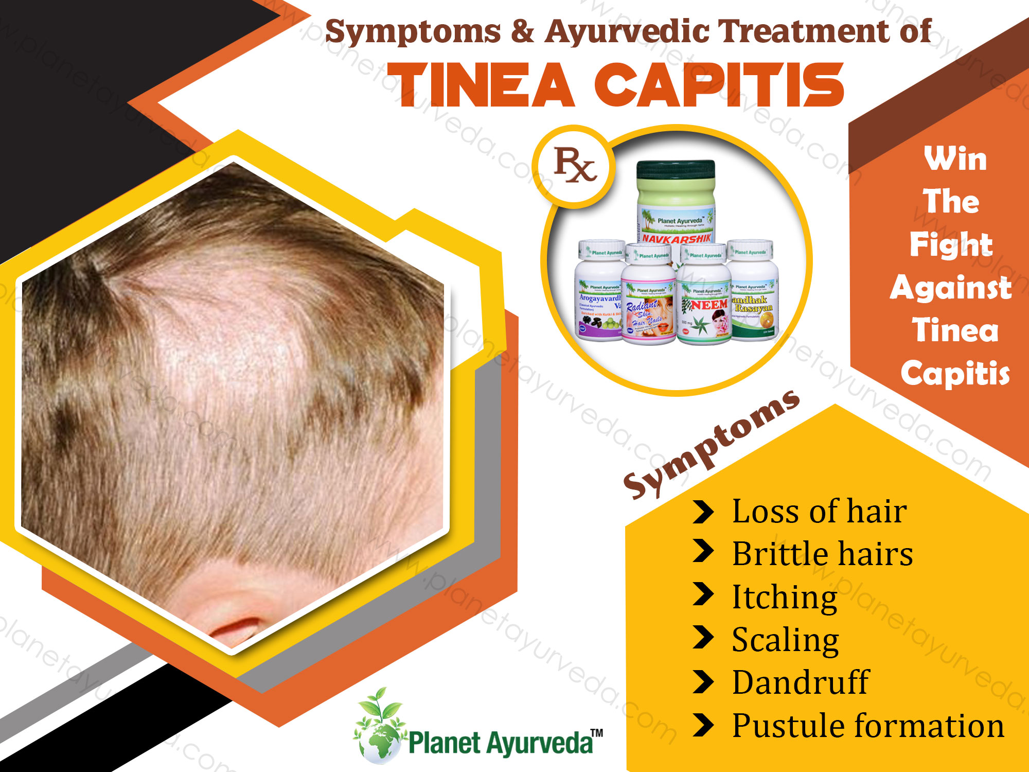 Symptoms-&-Treatment-Tinea-Capitis