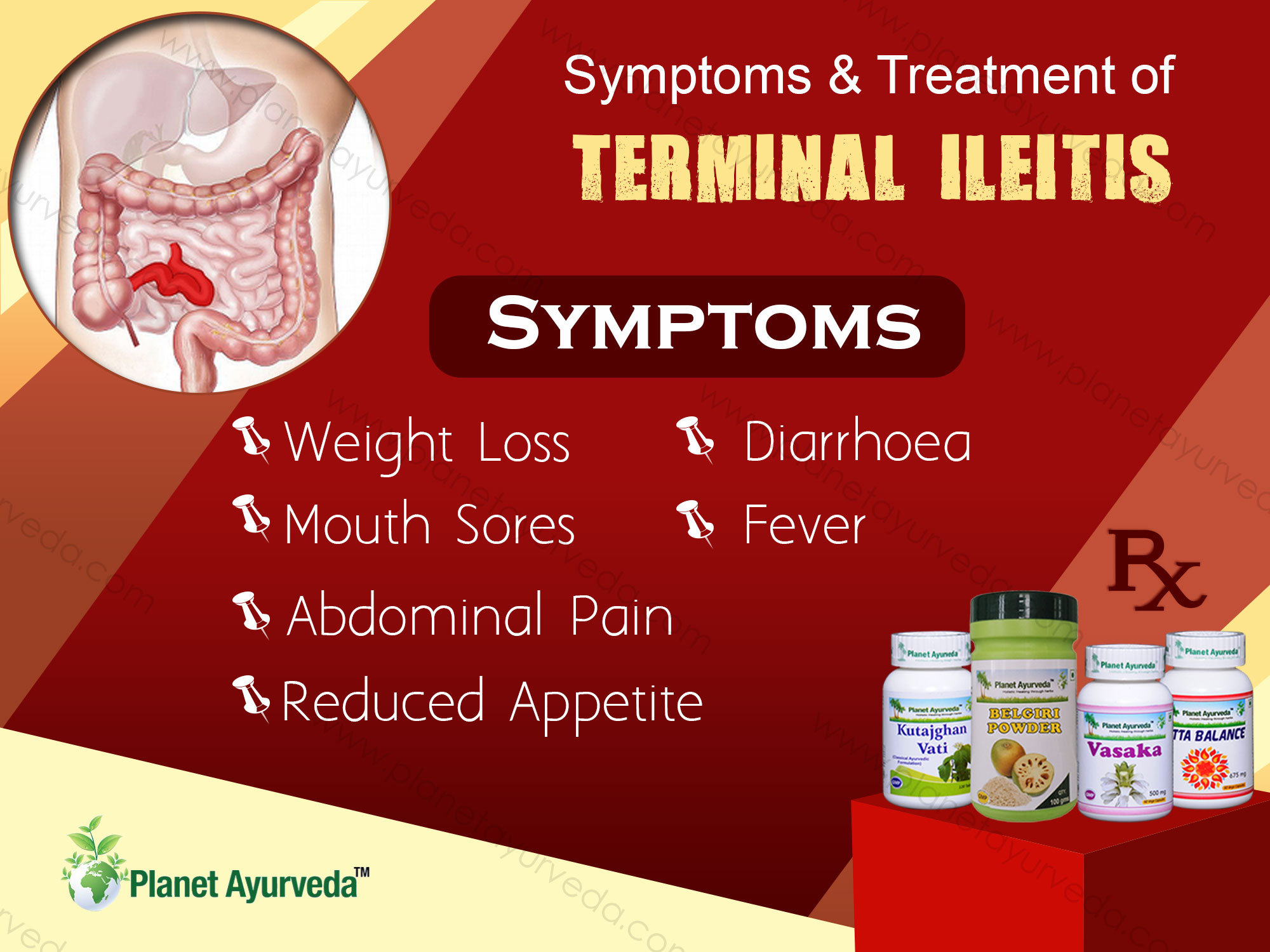 Symptoms-and-Treatment-Terminal-Ileitis