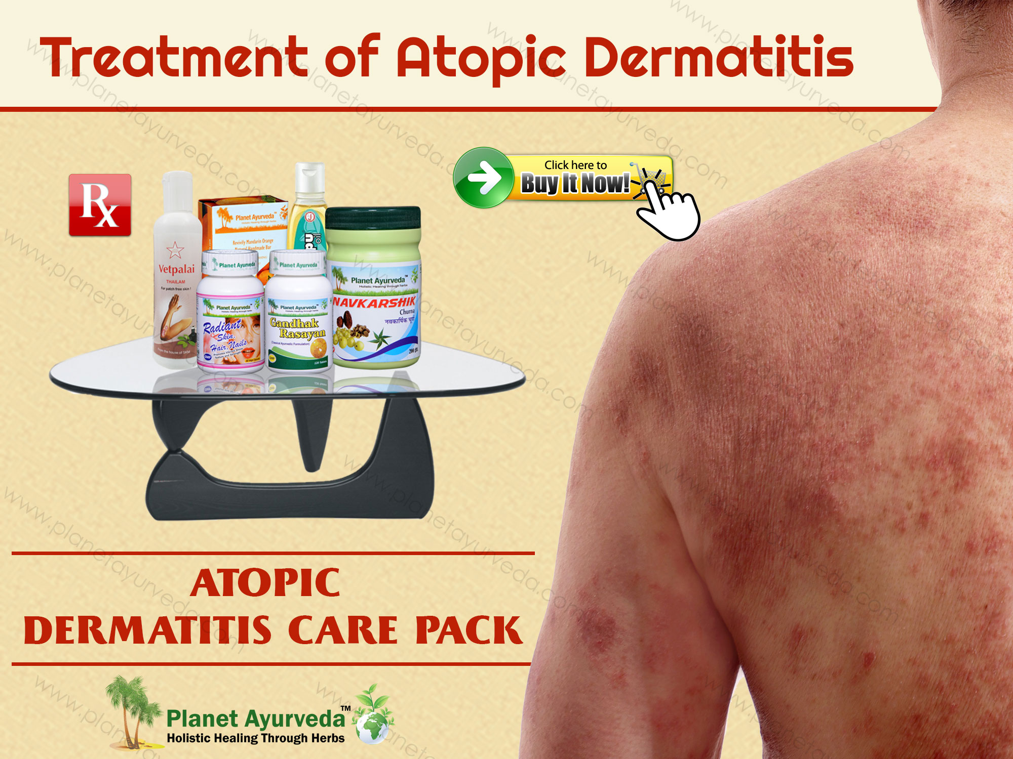 atopic-dermatitis-treatment