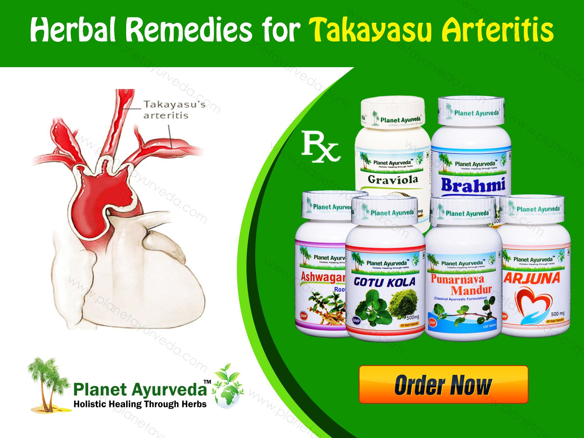 Herbal-Remedies-for-takayasu-Arteritis