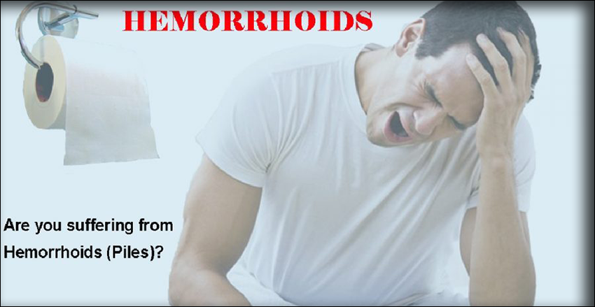 Symptoms of Piles or Hemorrhoids