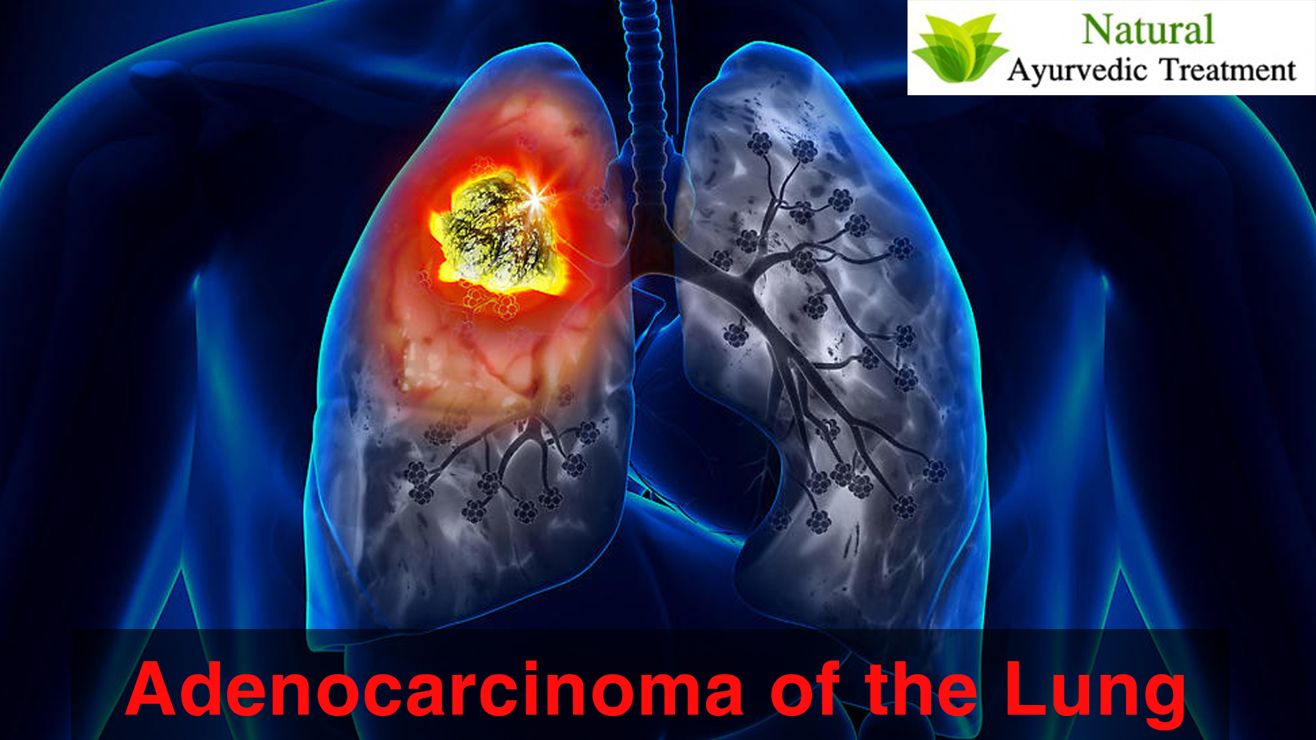 Ayurvedic Treatment for Adenocarcinoma of the Lung