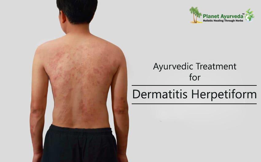 Dermatitis-Herpetiform