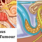 Glomus-Jugulare-Tumour