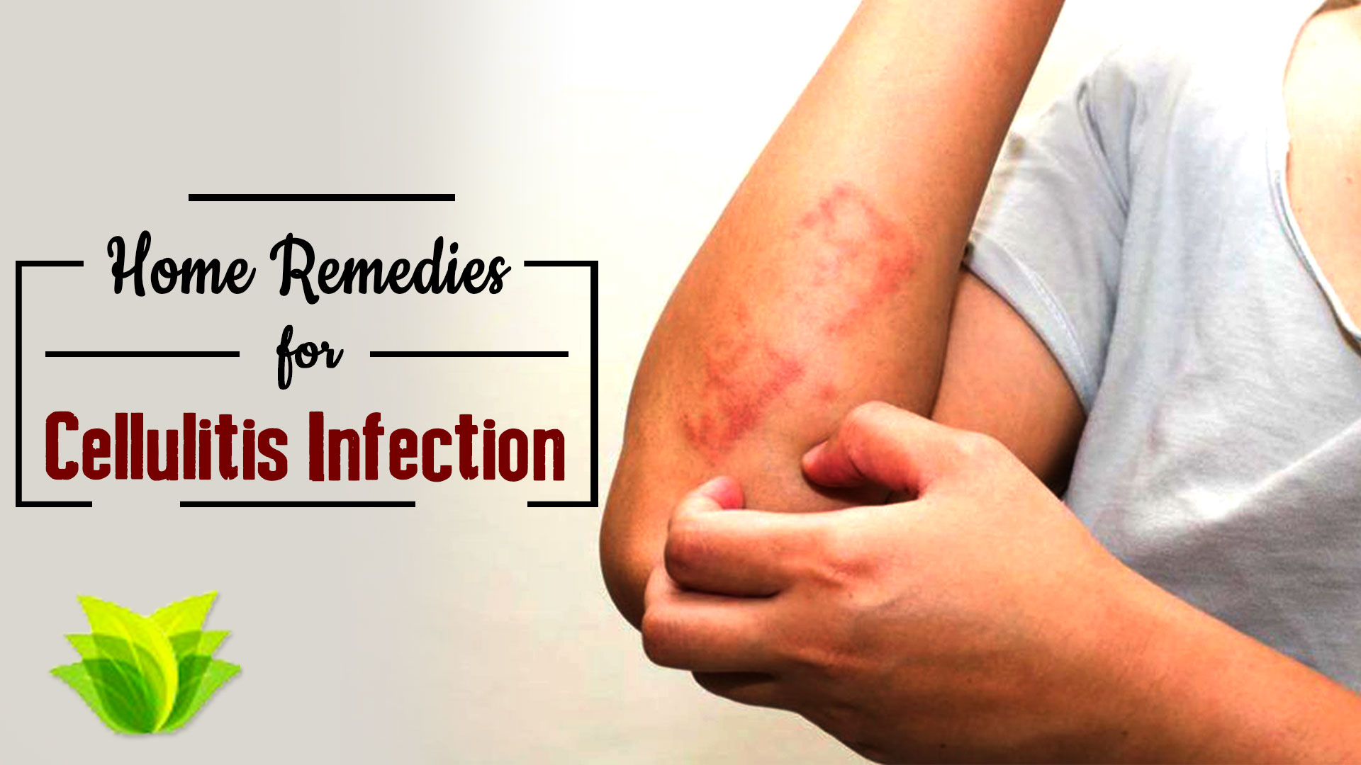 "Cellulitis Infection  ""A Bacterial skin Infection"""