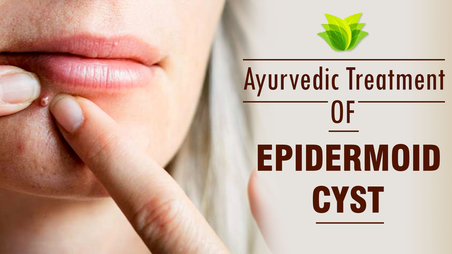 Ayurvedic Treatment for Epidermoid Cysts - Causes, Symptoms, Diagnosis & Herbal Remedies