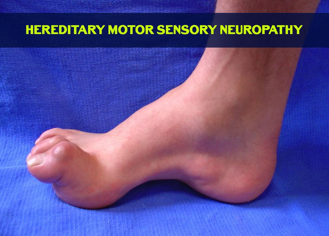 What Are Neutral Mutations Treatment Of Hereditary Motor Sensory Neuropathy In Ayurveda
