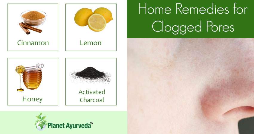 Home-remedies-clogged-pores
