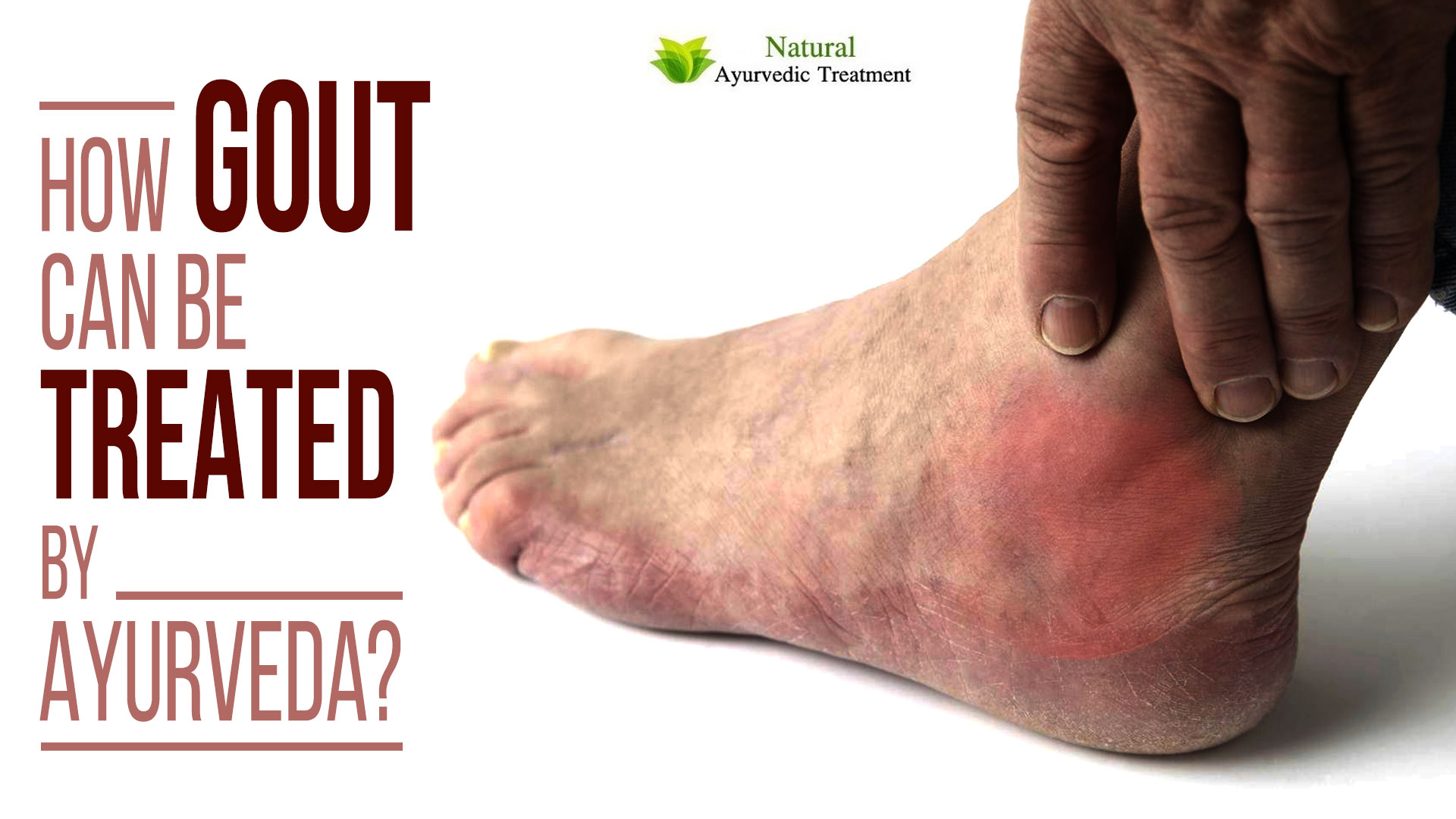 How Gout can be Treated by Ayurveda?