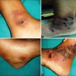 Livedoid Vasculopathy