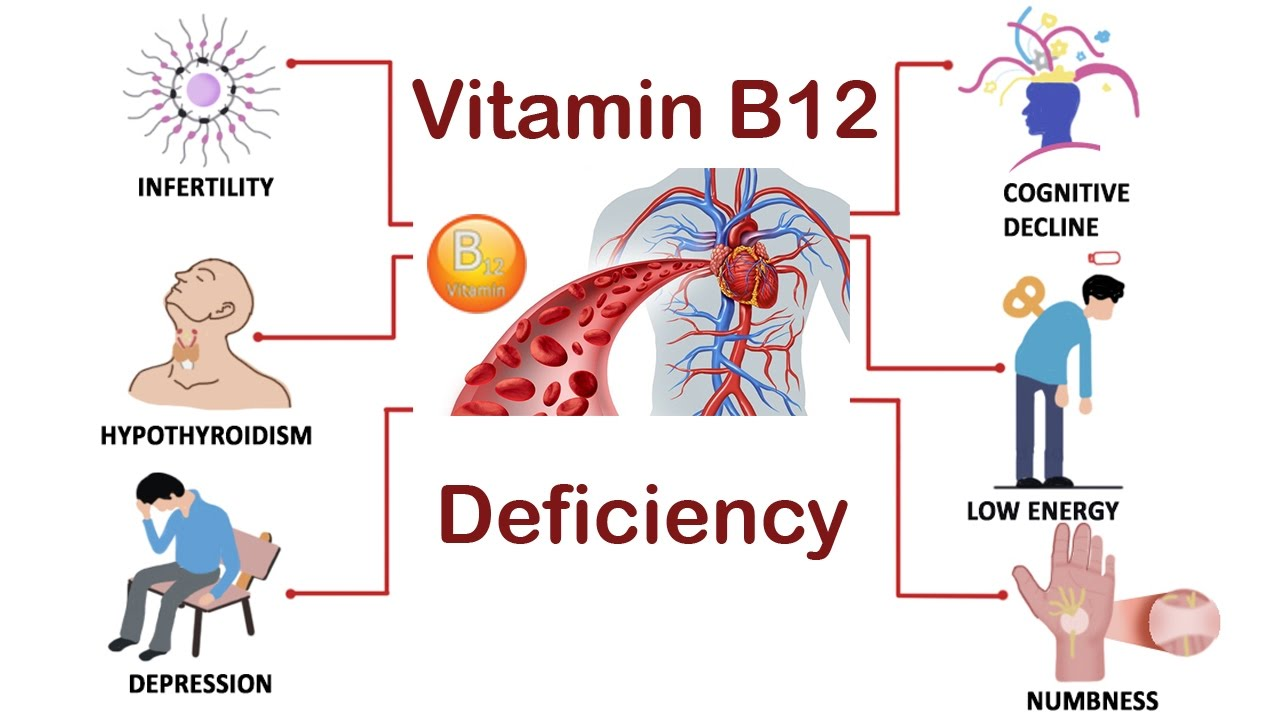 b12 defficiency