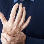 rheombus-arthritis