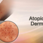 Herbal Supplements for Atopic Dermatitis