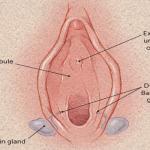 Bartholin's Cyst