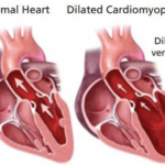 Canine Dilated Cardiomyopathy (DCM) in Dogs