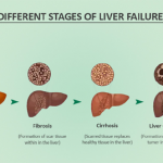 End Stage Liver Disease