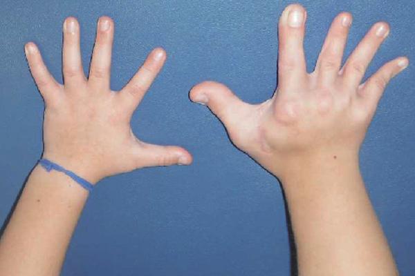 Hemi-hyperplasia