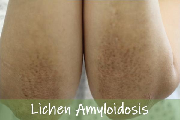 Lichen Amyloidosis