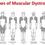 Limb-girdle muscular dystrophy (LGMD)