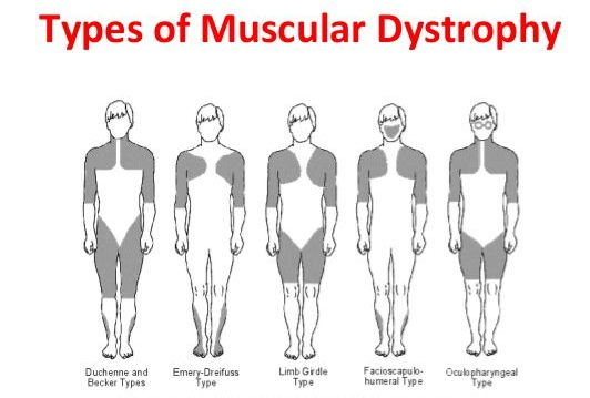 Limb-girdle muscular dystrophy (LGMD)