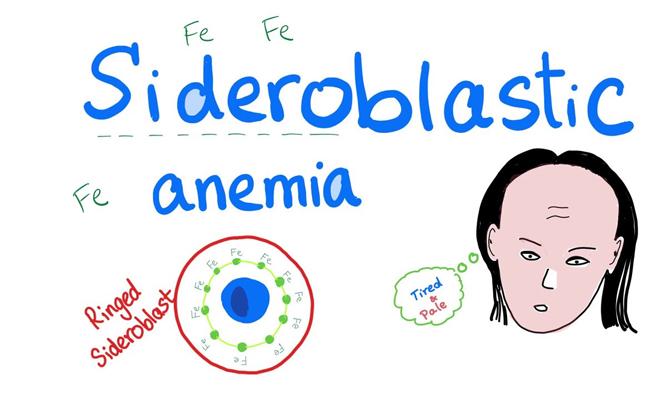 Sideroblastic Anemia
