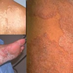 Treatment of Fungal Infection