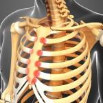 Treatment of Costochondritis