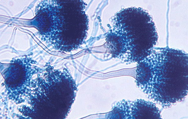 Natural Treatment of Aspergillus Fumigatus