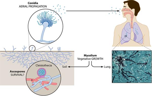 Natural Treatment Aspergillus Fumigatus