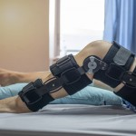 ACL (Anterior Cruciate Ligament)
