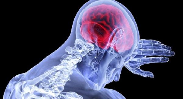 Idiopathic Intracranial Hypertension