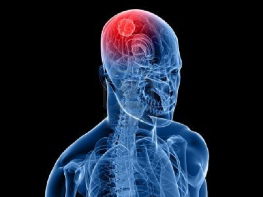 Idiopathic Intracranial Hypertension