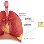 Pleural Mesothelioma