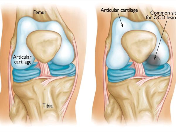 Calve Disease (Osteochondritis)
