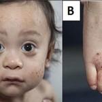 Wiskott Aldrich syndrome