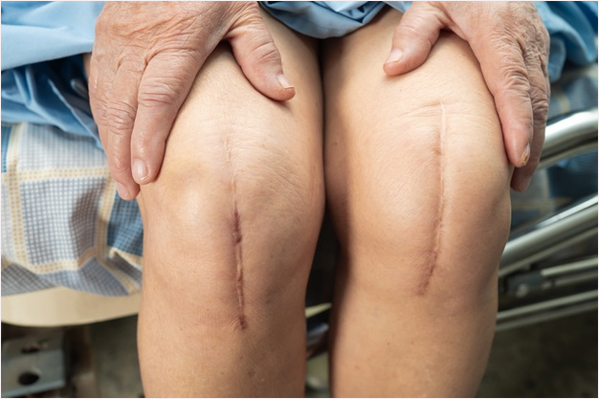 joint pain replacement