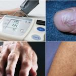 causes of Arteriolar hyalinosis