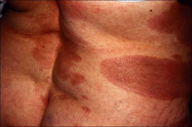 Poikiloderma-Like Cutaneous Amyloidosis