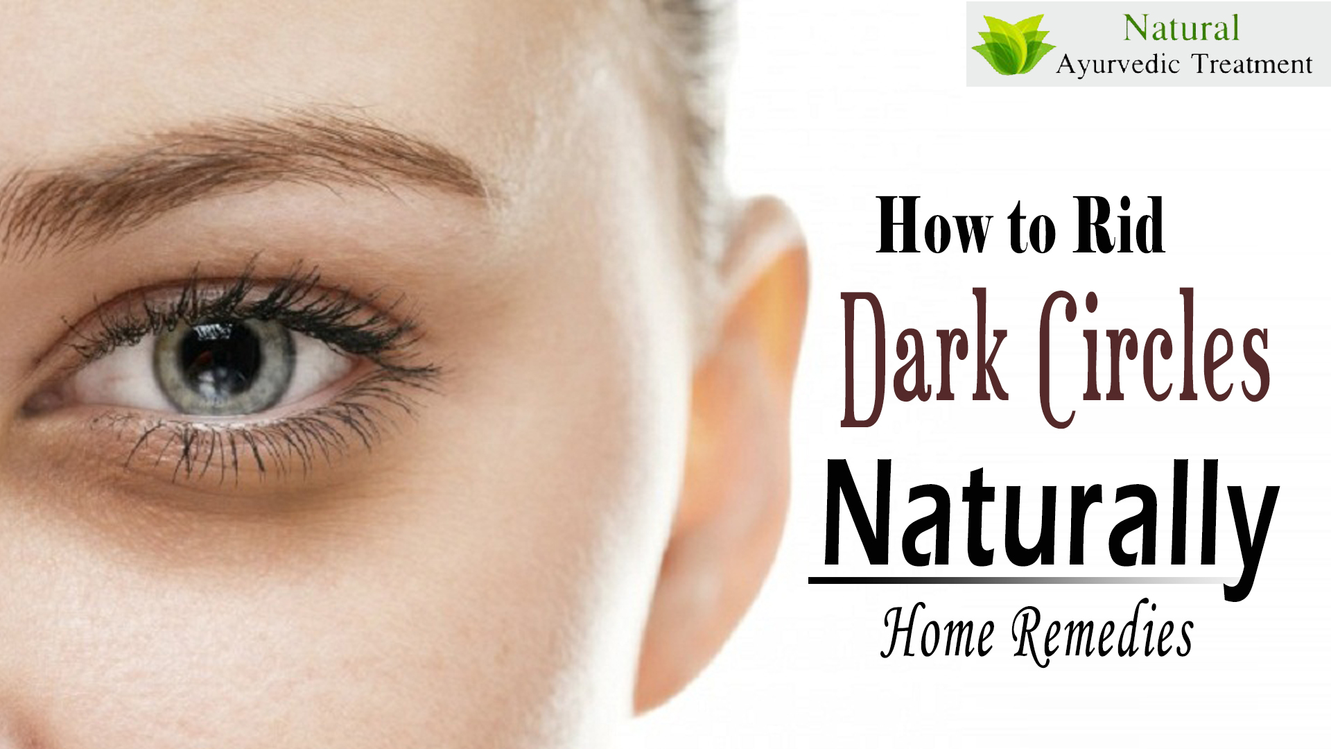 What are The Home Remedies to Get Your Dark Circles Removed?