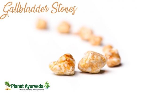 Gallbladder Stones and Its Ayurvedic Management