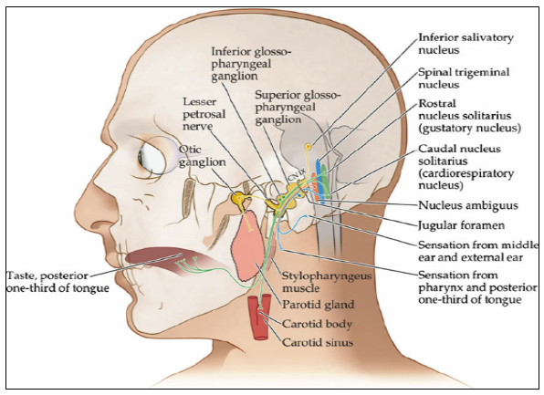Natural Tratment for Glossopharyngeal Neuralgia